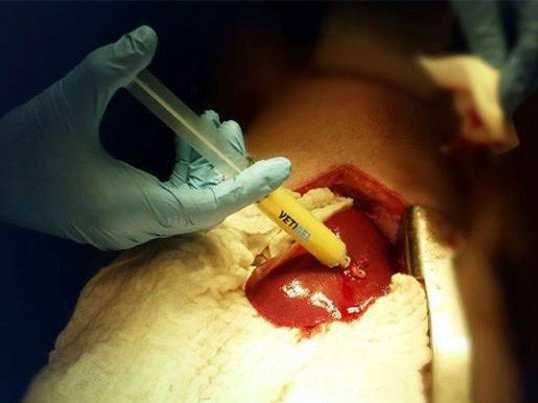 vetigel-new-plant-based-gel-that-stops-traumatic-bleeding-just-15-seconds-1