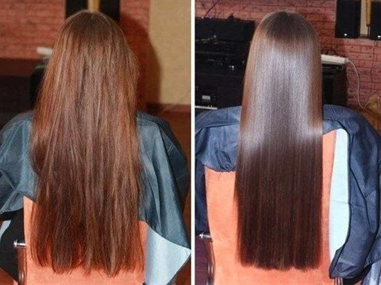 Hosszú és egészséges hajat szeretnél